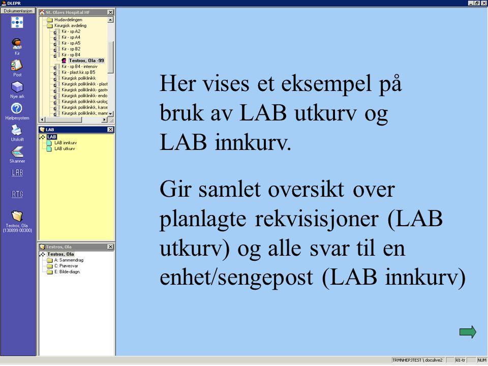 Her vises et eksempel på bruk av LAB utkurv og LAB innkurv.