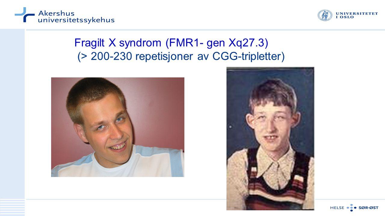 Fragilt X syndrom (FMR1- gen Xq27.3) (> 200-230 repetisjoner av CGG-tripletter)