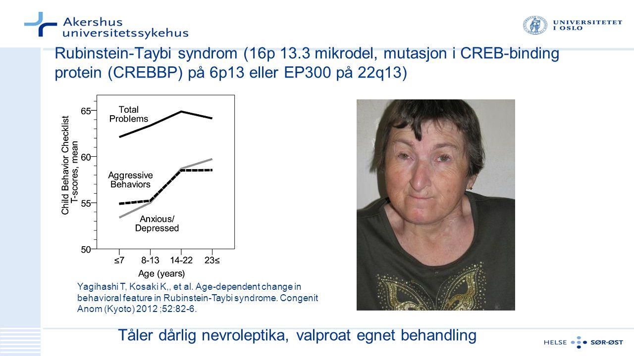 Rubinstein-Taybi syndrom (16p 13.3 mikrodel, mutasjon i CREB-binding protein (CREBBP) på 6p13 eller EP300 på 22q13) Tåler dårlig nevroleptika, valproat egnet behandling Yagihashi T, Kosaki K,, et al.