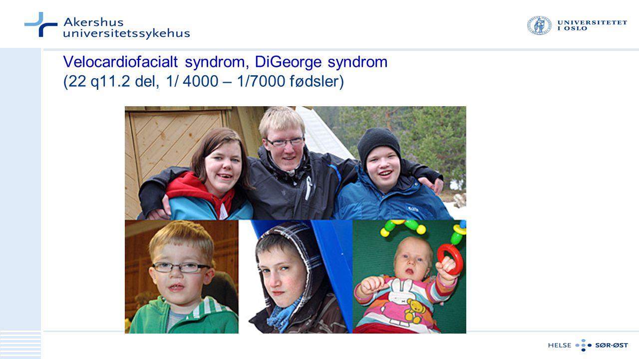 Velocardiofacialt syndrom, DiGeorge syndrom (22 q11.2 del, 1/ 4000 – 1/7000 fødsler)
