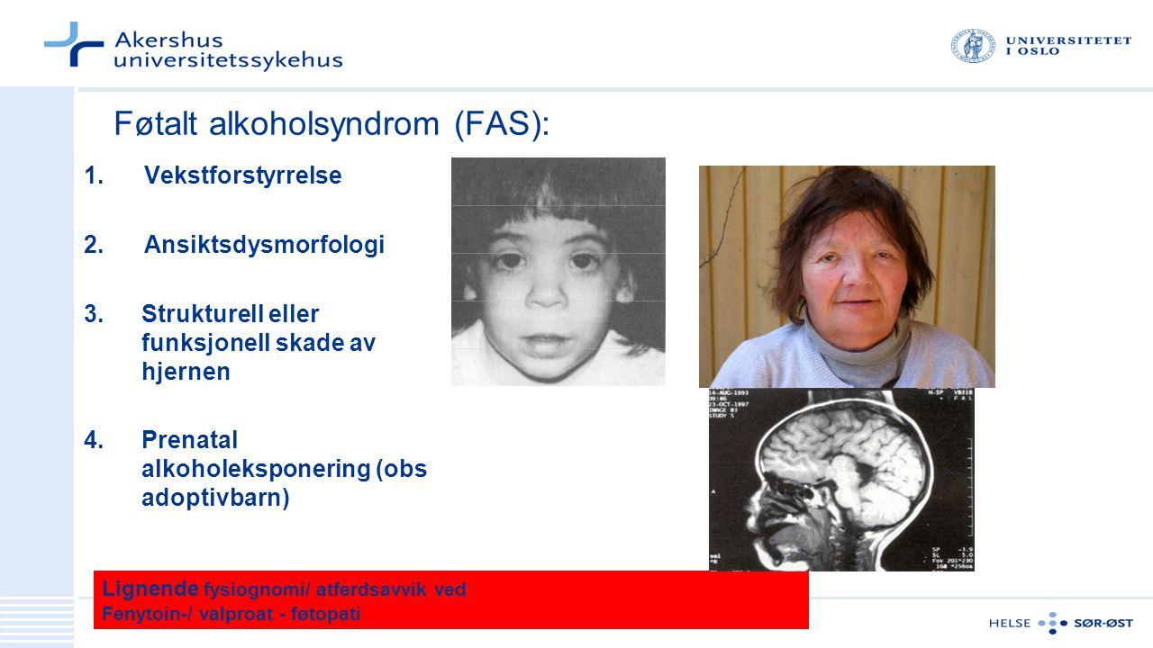 Føtalt alkoholsyndrom (FAS): 1. Vekstforstyrrelse 2. Ansiktsdysmorfologi 3.Strukturell eller funksjonell skade av hjernen 4.Prenatal alkoholeksponerin