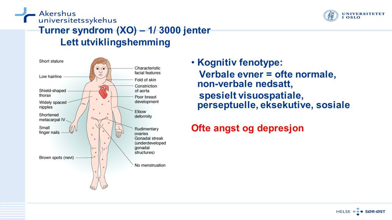 Turner syndrom (XO) – 1/ 3000 jenter Lett utviklingshemming Kognitiv fenotype: Verbale evner = ofte normale, non-verbale nedsatt, spesielt visuospatiale, perseptuelle, eksekutive, sosiale Ofte angst og depresjon