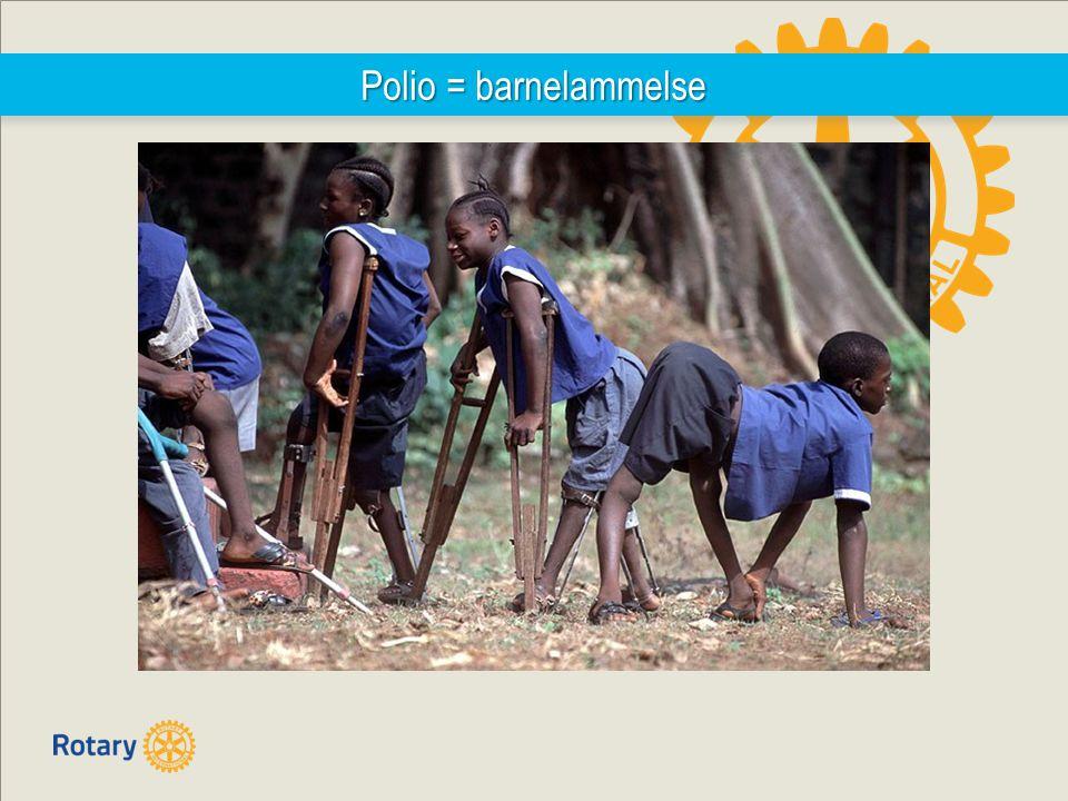 Polio = barnelammelse
