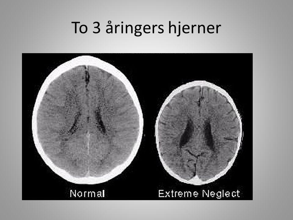 To 3 åringers hjerner