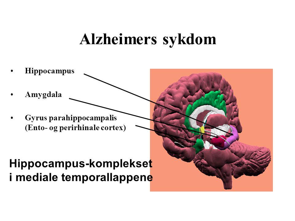 Alzheimers sykdom Hippocampus Amygdala Gyrus parahippocampalis (Ento- og perirhinale cortex) Hippocampus-komplekset i mediale temporallappene