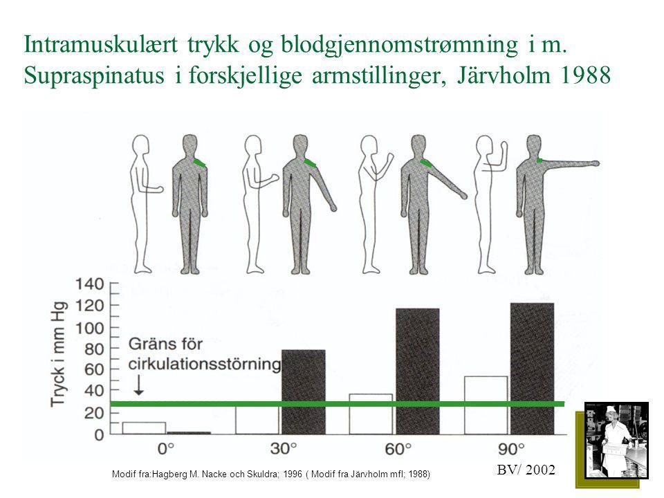 Intramuskulært trykk og blodgjennomstrømning i m. Supraspinatus i forskjellige armstillinger, Järvholm 1988 Modif fra:Hagberg M. Nacke och Skuldra; 19