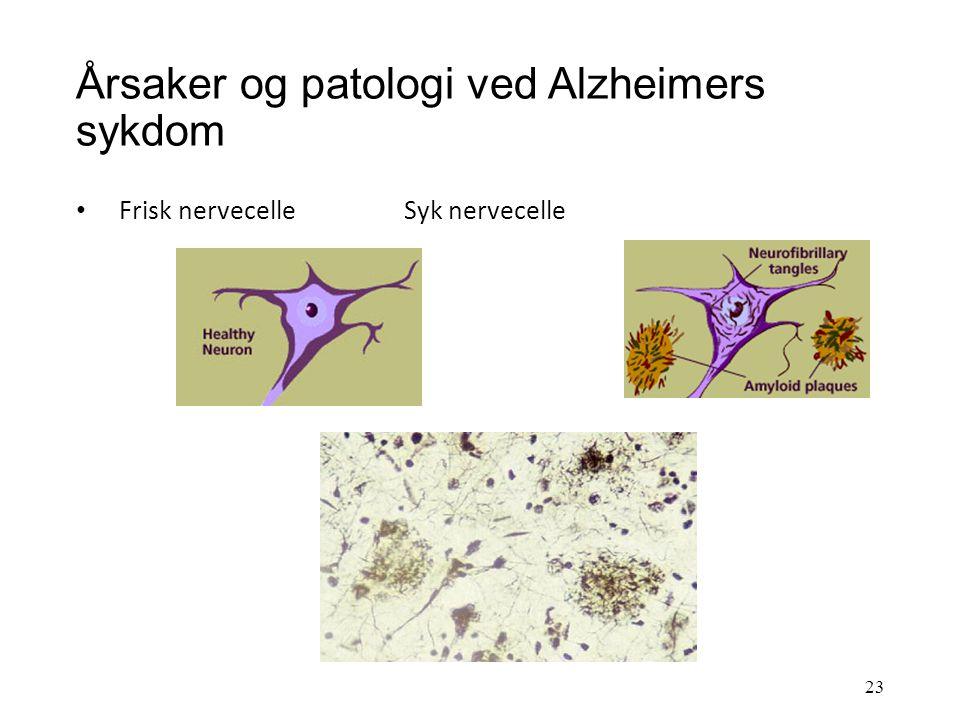 Årsaker og patologi ved Alzheimers sykdom Patologiske forandringer (sees mikroskopisk): dannelse av proteinavleiringer (betaamyloid) rundt nervecellen