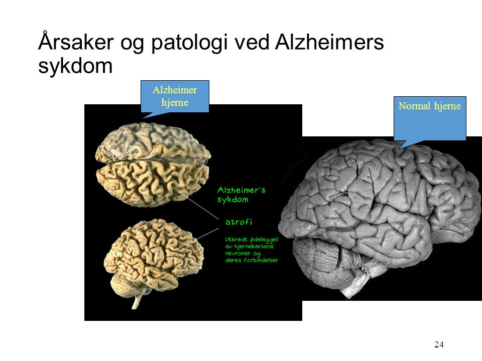 Årsaker og patologi ved Alzheimers sykdom Frisk nervecelle Syk nervecelle 23