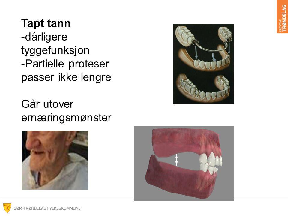 Tapt tann -dårligere tyggefunksjon -Partielle proteser passer ikke lengre Går utover ernæringsmønster