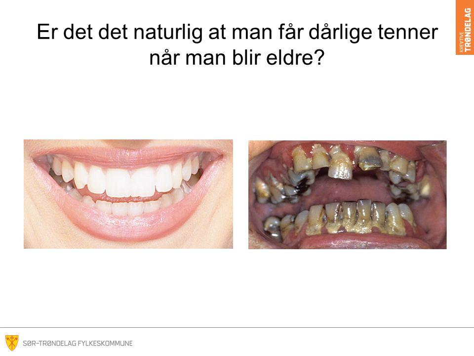 Er det det naturlig at man får dårlige tenner når man blir eldre?
