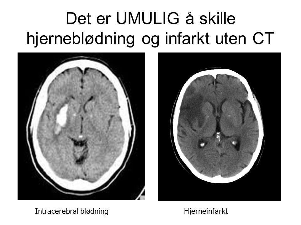 Det er UMULIG å skille hjerneblødning og infarkt uten CT Intracerebral blødning Hjerneinfarkt