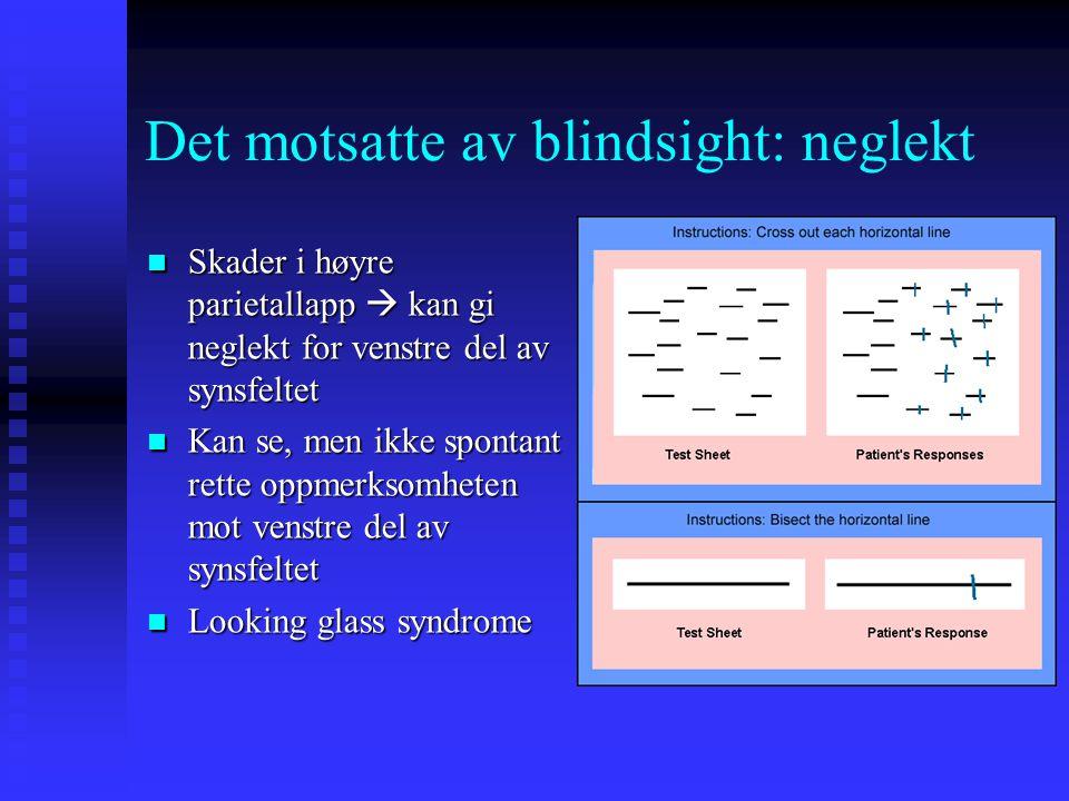 Det motsatte av blindsight: neglekt Skader i høyre parietallapp  kan gi neglekt for venstre del av synsfeltet Skader i høyre parietallapp  kan gi ne