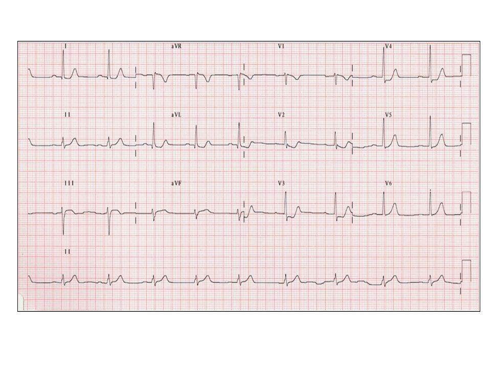 Arytmier Tachyarytmier - hovedregel: – Smalkomplekset, uregelmessig rytme atrieflimmer – Smalkomplekset, regelmessig rytme PSVT – Bredkomplekset rytme ventrikkeltachycardi Bradyarytmier – SA blokk/syk-sinus syncoper, men pasienten dør ikke av selve arytmien – Høygradig AV-blokk alvorlige syncoper og høy mortalitet ubehandlet (80% 5-års mortalitet) – Intermitterende totalt AV-blokk Pasientene har normalt EKG mellom syncopene, og det kan gå år mellom hver hendelse