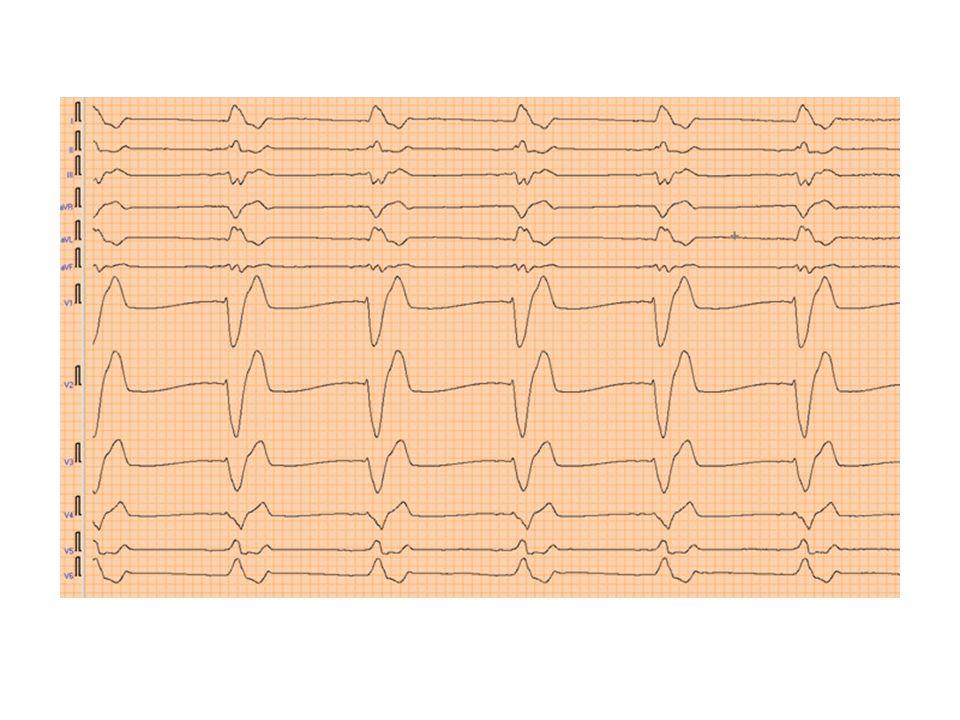 NSTEMI Oftest noe fredeligere klinikk Pasienten er gjennomsnittlig 10 år eldre EKG: ST senkninger, T-inversjoner, eller normalt(30%) Skyldes ofte en subtotal stenose eller okklusjon av et mindre kar Innlegges lokalsykehus Behandling: – dobbel platehemming ASA og Plavix/Brilique – lavmolekylært heparin – statin – betablokker Henvises oftest til angiografi i løpet av 1-3 døgn