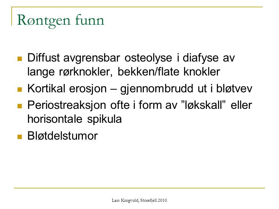 Lars Krogvold, Storefjell 2010 Røntgen funn Diffust avgrensbar osteolyse i diafyse av lange rørknokler, bekken/flate knokler Kortikal erosjon – gjenno