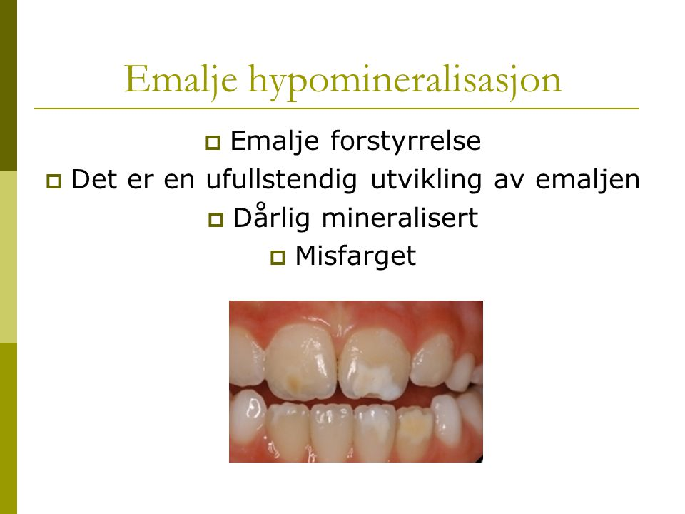 Emalje hypomineralisasjon  Emalje forstyrrelse  Det er en ufullstendig utvikling av emaljen  Dårlig mineralisert  Misfarget