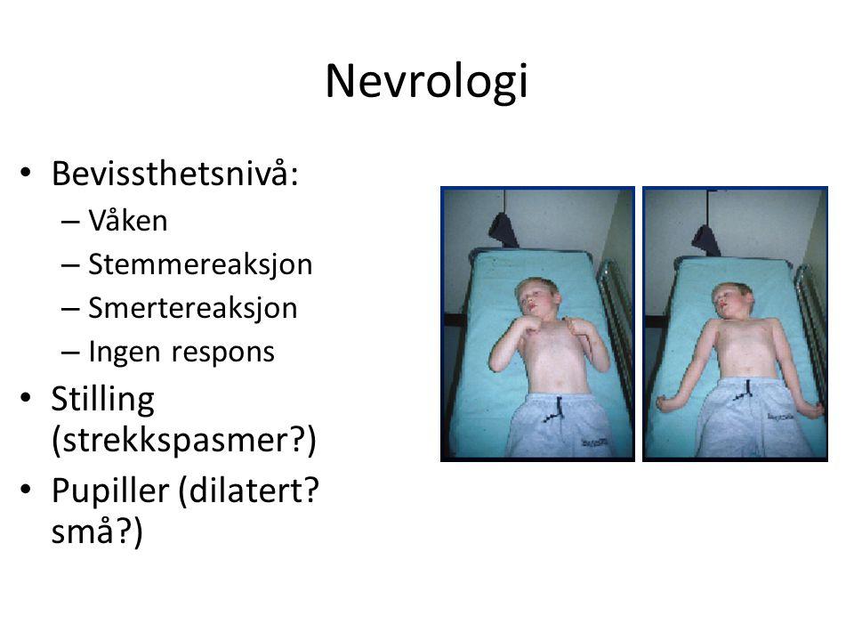 Nevrologi Bevissthetsnivå: – Våken – Stemmereaksjon – Smertereaksjon – Ingen respons Stilling (strekkspasmer?) Pupiller (dilatert.