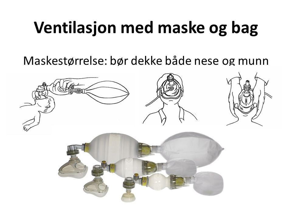Ventilasjon med maske og bag Maskestørrelse: bør dekke både nese og munn
