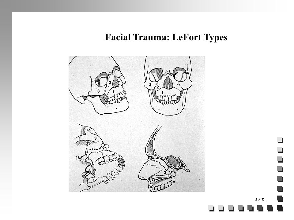 Facial Trauma: LeFort Types