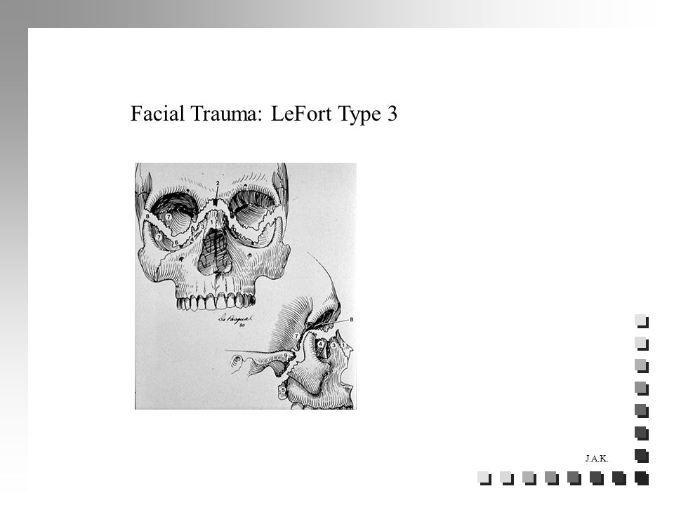 J.A.K. Facial Trauma: LeFort Type 3