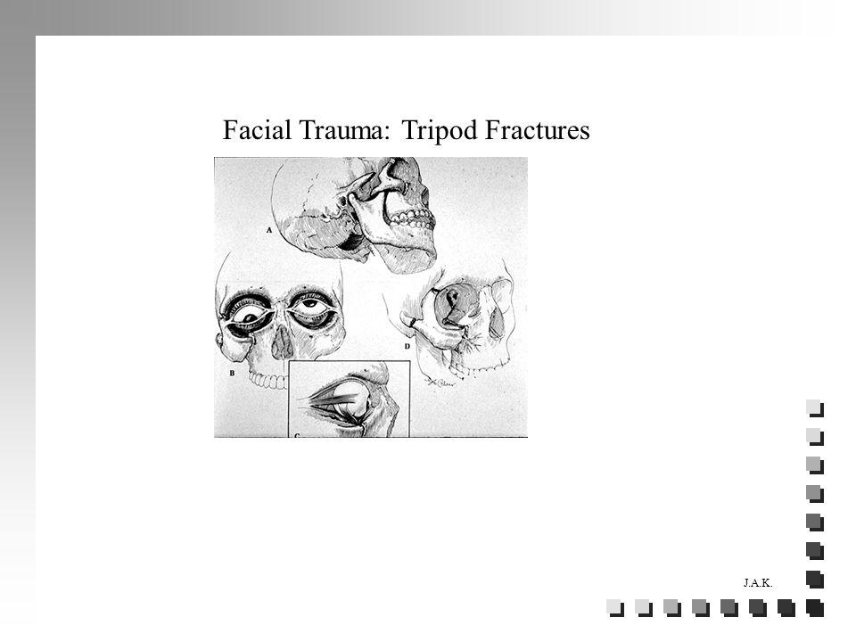 J.A.K. Facial Trauma: Tripod Fractures