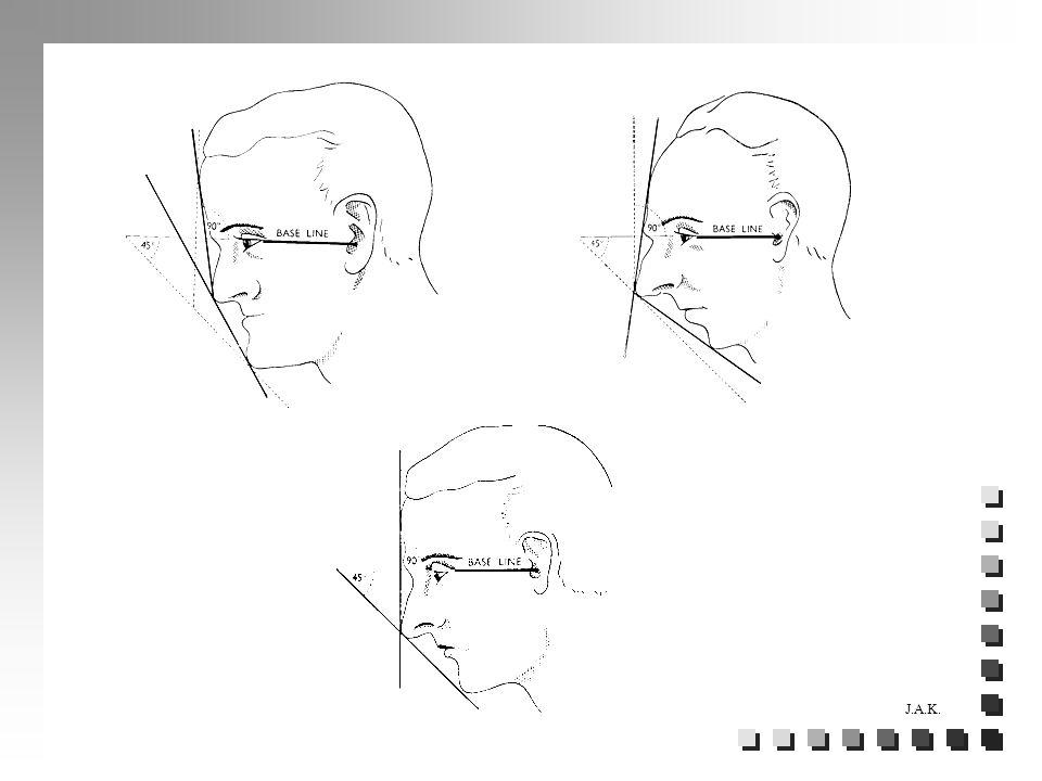 Facial Trauma: LeFort Types