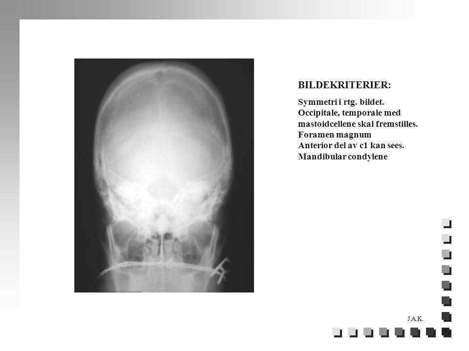 BILDEKRITERIER: Symmetri i rtg. bildet. Occipitale, temporale med mastoidcellene skal fremstilles. Foramen magnum Anterior del av c1 kan sees. Mandibu