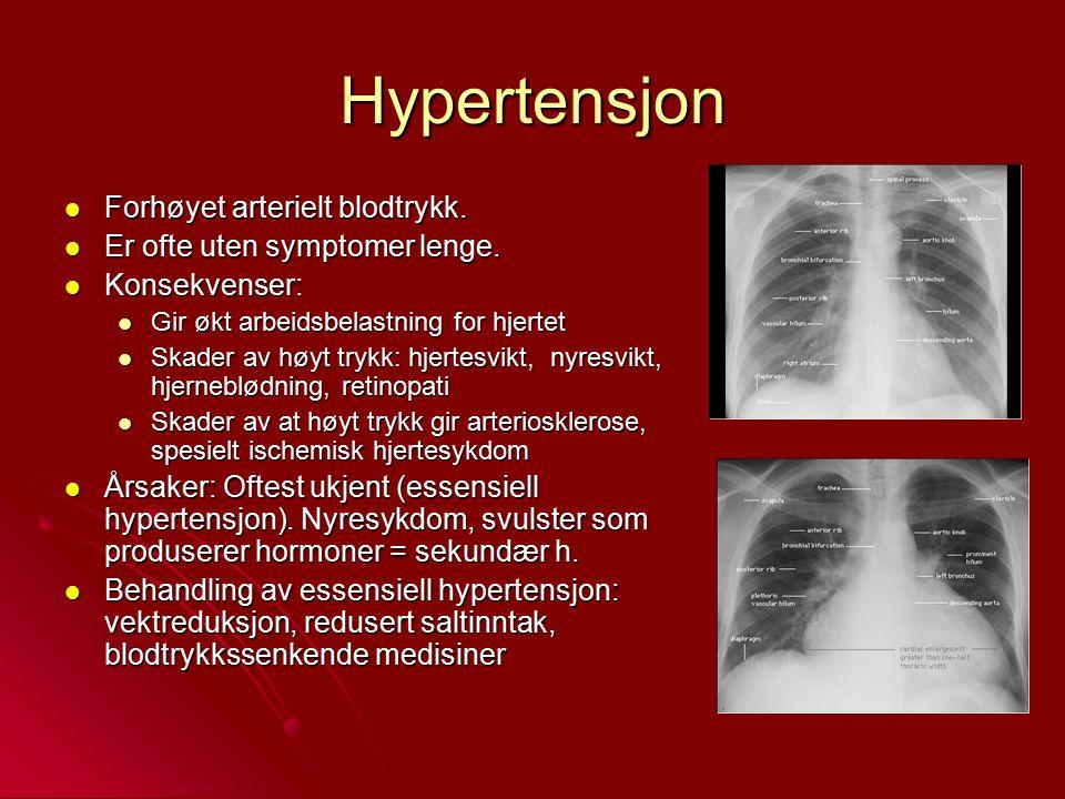 Hypertensjon Forhøyet arterielt blodtrykk. Forhøyet arterielt blodtrykk. Er ofte uten symptomer lenge. Er ofte uten symptomer lenge. Konsekvenser: Kon