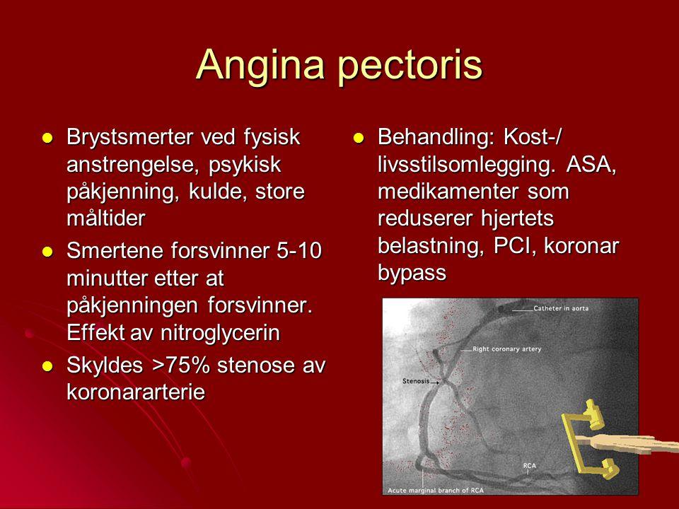 Angina pectoris Brystsmerter ved fysisk anstrengelse, psykisk påkjenning, kulde, store måltider Brystsmerter ved fysisk anstrengelse, psykisk påkjenni