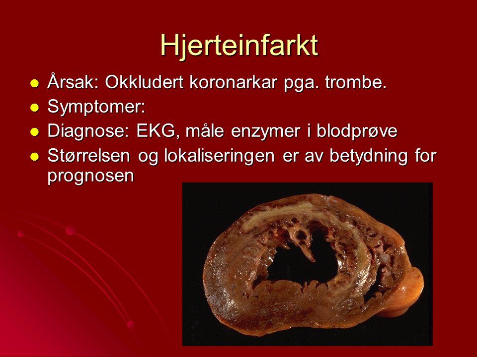 Hjerteinfarkt Årsak: Okkludert koronarkar pga. trombe. Årsak: Okkludert koronarkar pga. trombe. Symptomer: Symptomer: Diagnose: EKG, måle enzymer i bl