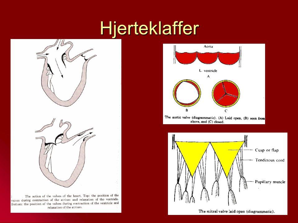 Arteriosklerose = Åreforkalkning Vanligste form er aterosklerose Vanligste form er aterosklerose Aterosklerose: Opphopning av lipider (fettstoffer), fremfor alt kolesterol i intima.