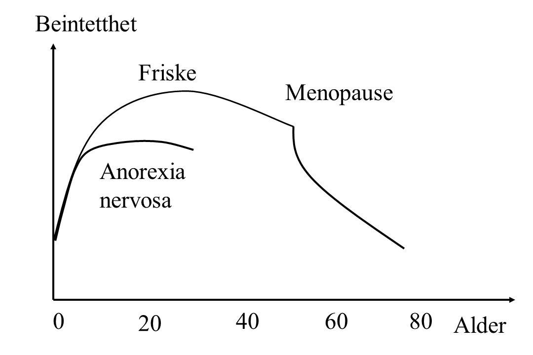 Beintetthet Alder 08040 20 60 Menopause Friske Anorexia nervosa