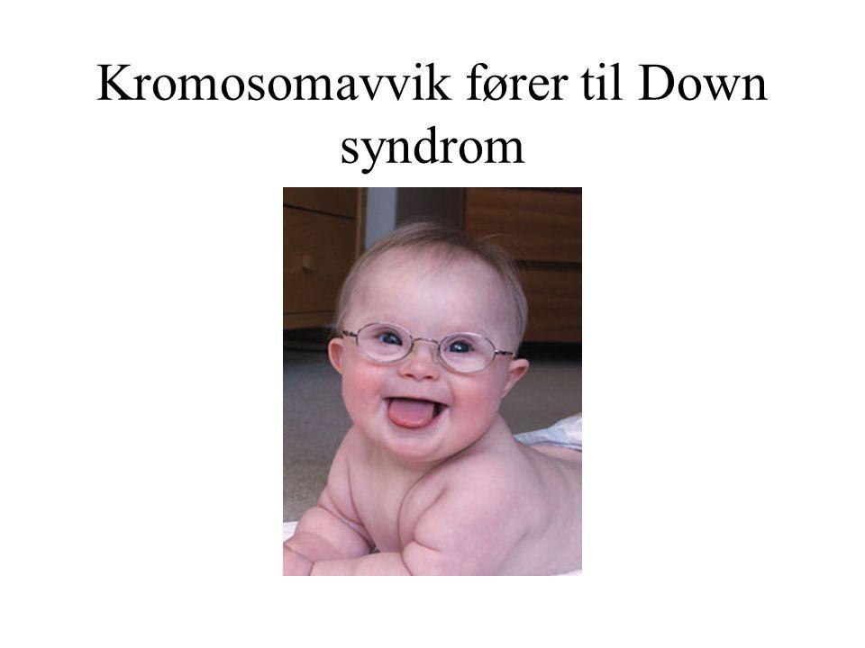Undergrupper av kromosomavvik Standard trisomy –3 kromosom 21 isteden for 2 i alle kroppens celler, totalt 47 i steden for 46.