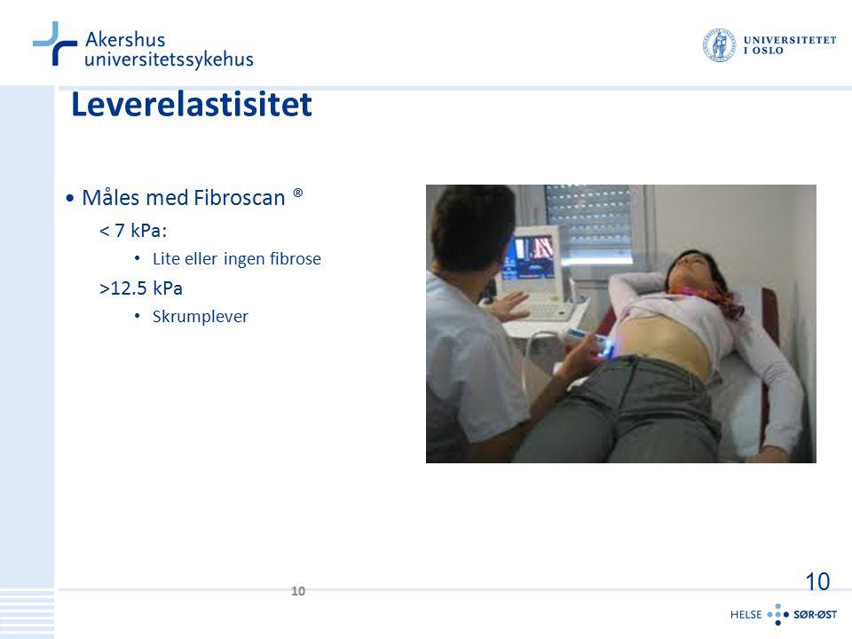 Leverelastisitet Måles med Fibroscan ® < 7 kPa: Lite eller ingen fibrose >12.5 kPa Skrumplever 10