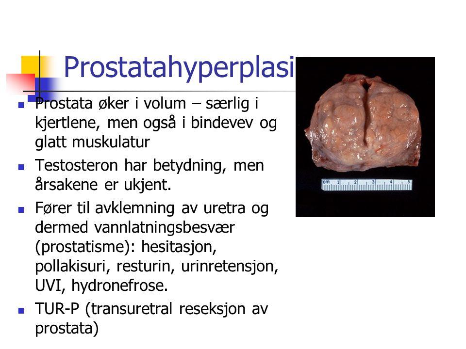 Prostatahyperplasi Prostata øker i volum – særlig i kjertlene, men også i bindevev og glatt muskulatur Testosteron har betydning, men årsakene er ukje