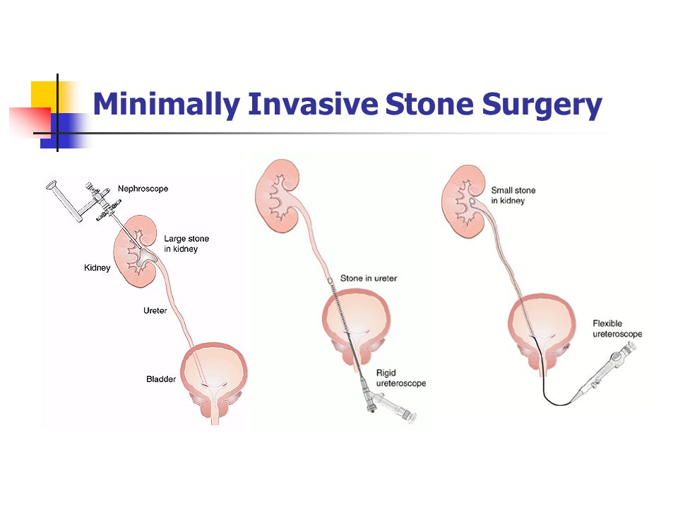 Minimally Invasive Stone Surgery