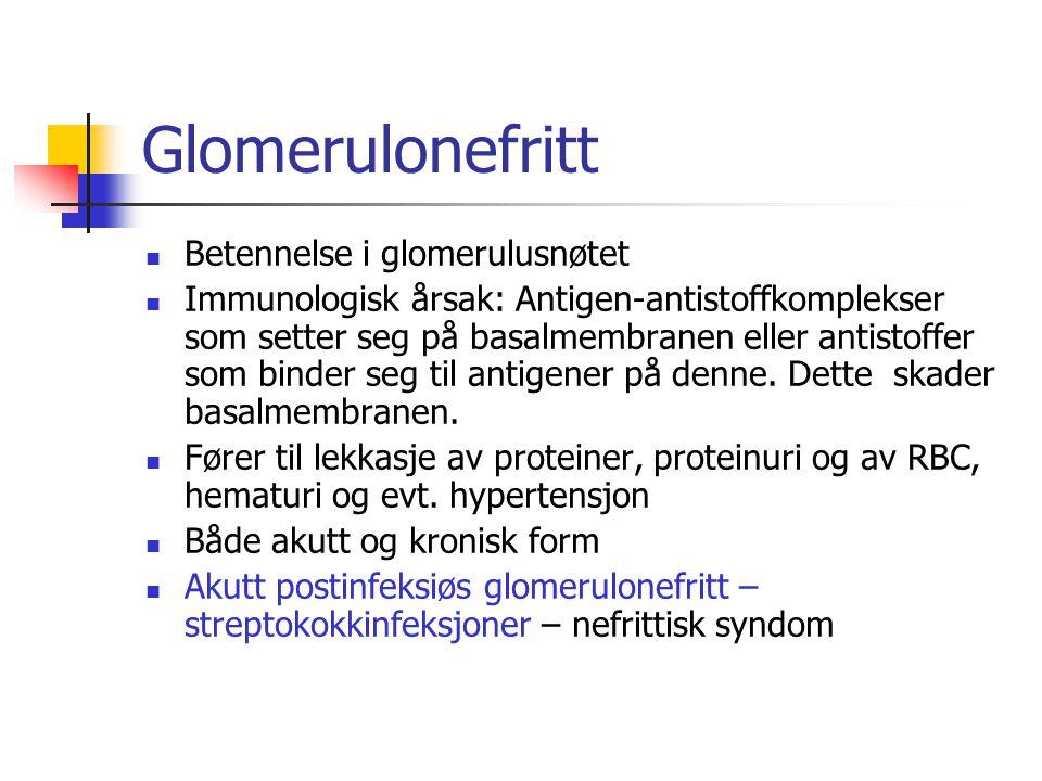 Glomerulonefritt Betennelse i glomerulusnøtet Immunologisk årsak: Antigen-antistoffkomplekser som setter seg på basalmembranen eller antistoffer som b