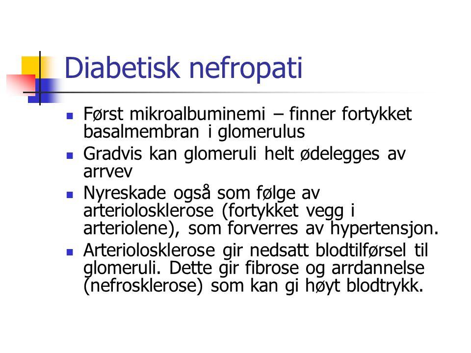 Diabetisk nefropati Først mikroalbuminemi – finner fortykket basalmembran i glomerulus Gradvis kan glomeruli helt ødelegges av arrvev Nyreskade også s