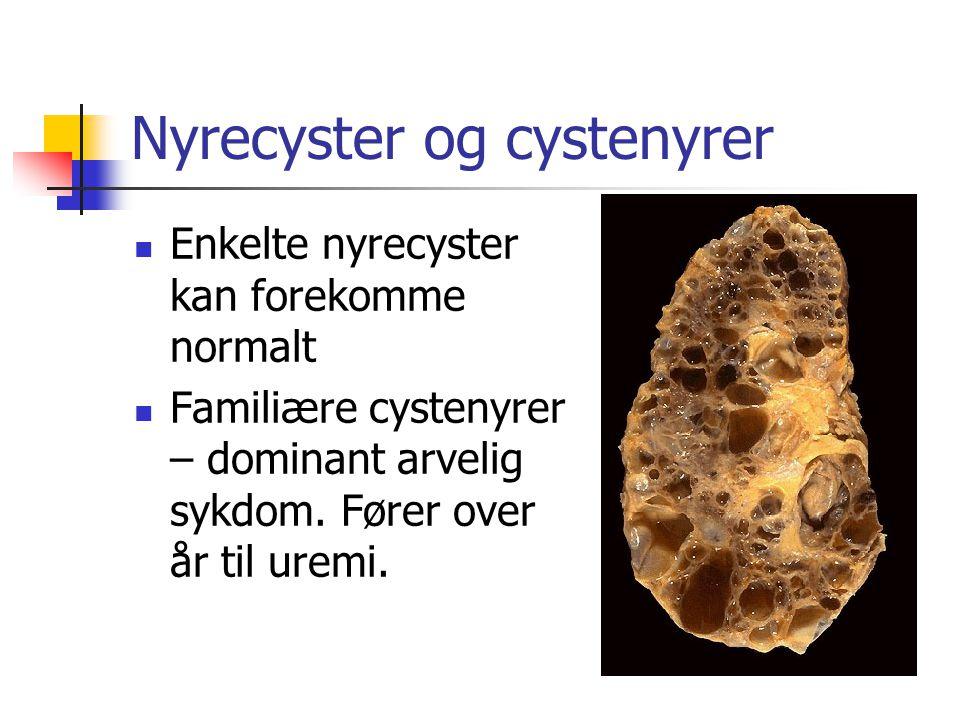 Nyrecyster og cystenyrer Enkelte nyrecyster kan forekomme normalt Familiære cystenyrer – dominant arvelig sykdom. Fører over år til uremi.
