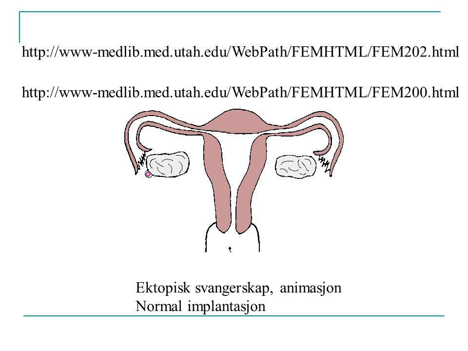 http://www-medlib.med.utah.edu/WebPath/FEMHTML/FEM202.html Ektopisk svangerskap, animasjon Normal implantasjon http://www-medlib.med.utah.edu/WebPath/FEMHTML/FEM200.html