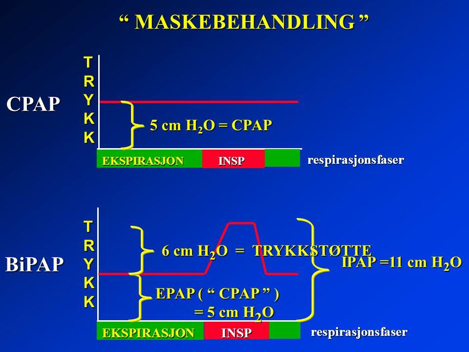 """ MASKEBEHANDLING "" BiPAP TRYKKTRYKKTRYKKTRYKK INSP respirasjonsfaser EKSPIRASJON CPAP TRYKKTRYKKTRYKKTRYKKINSP respirasjonsfaser EKSPIRASJON 5 cm H 2"