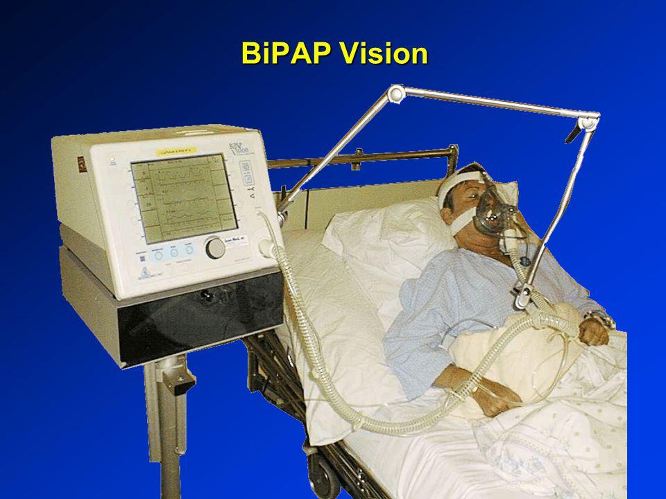 BiPAP Vision