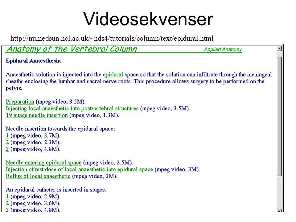 http://numedsun.ncl.ac.uk/~nds4/tutorials/column/text/epidural.html Videosekvenser