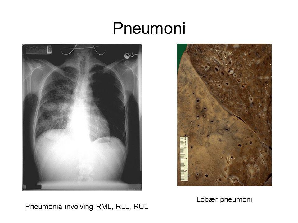 Pneumoni Pneumonia involving RML, RLL, RUL Lobær pneumoni