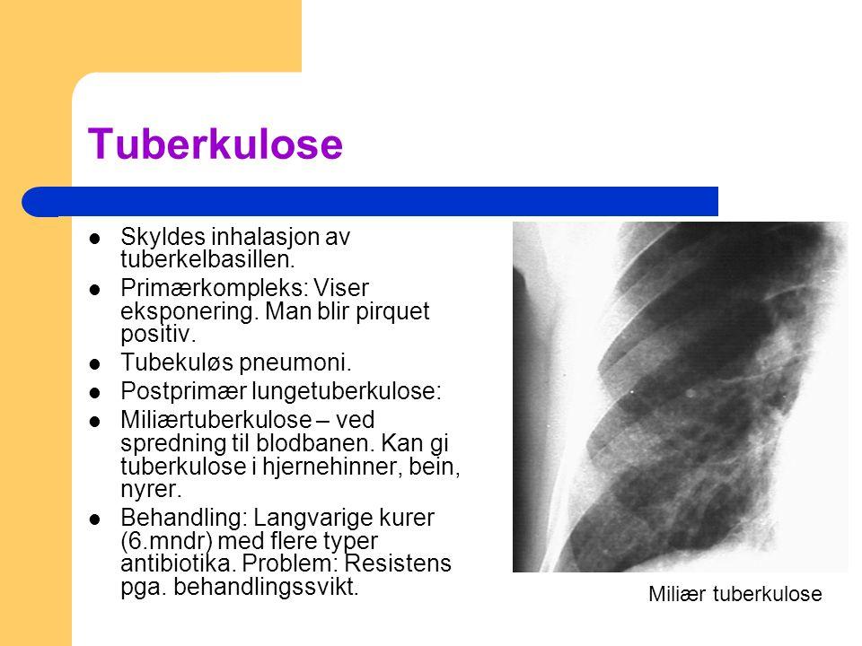 Tuberkulose Skyldes inhalasjon av tuberkelbasillen. Primærkompleks: Viser eksponering. Man blir pirquet positiv. Tubekuløs pneumoni. Postprimær lunget