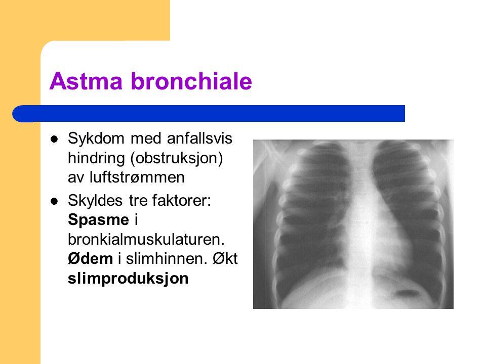 Astma bronchiale Sykdom med anfallsvis hindring (obstruksjon) av luftstrømmen Skyldes tre faktorer: Spasme i bronkialmuskulaturen.