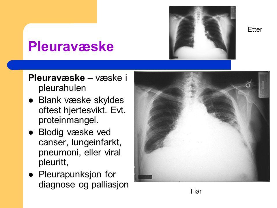 Pleuravæske Pleuravæske – væske i pleurahulen Blank væske skyldes oftest hjertesvikt. Evt. proteinmangel. Blodig væske ved canser, lungeinfarkt, pneum