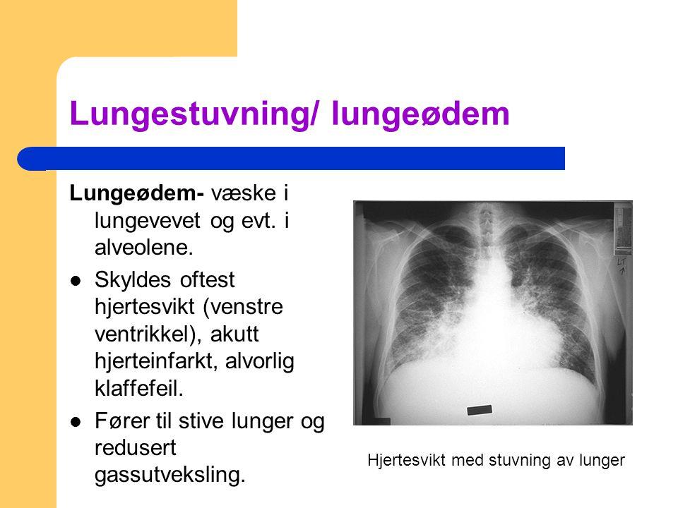 Lungestuvning/ lungeødem Lungeødem- væske i lungevevet og evt. i alveolene. Skyldes oftest hjertesvikt (venstre ventrikkel), akutt hjerteinfarkt, alvo