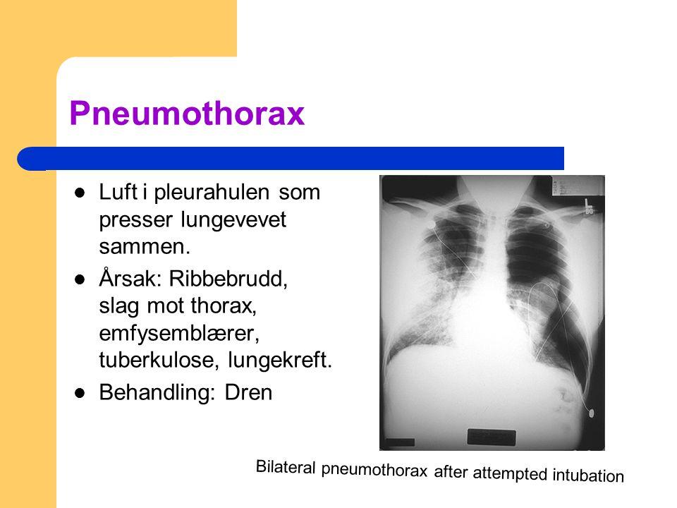 Pneumothorax Luft i pleurahulen som presser lungevevet sammen. Årsak: Ribbebrudd, slag mot thorax, emfysemblærer, tuberkulose, lungekreft. Behandling: