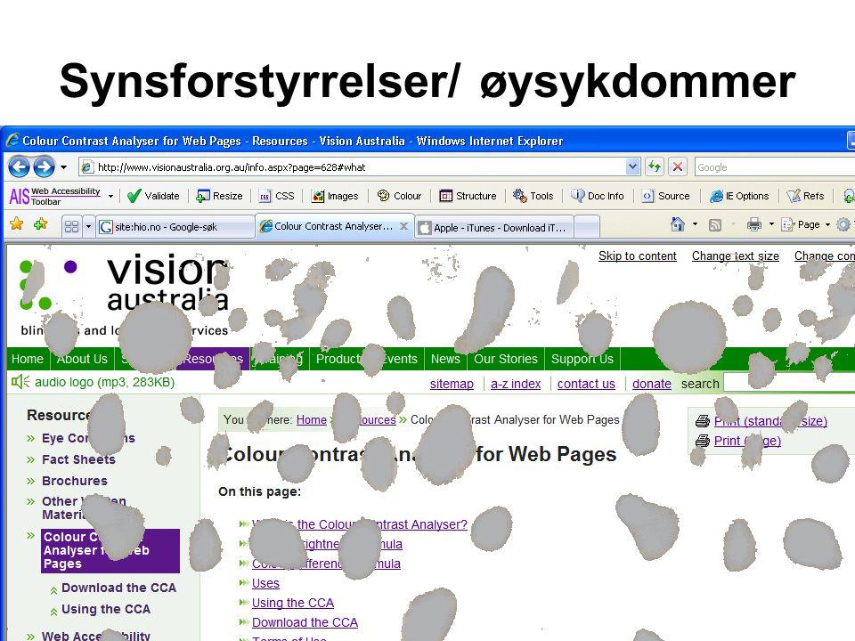 Kirsten Ribu Samfunnsinformatikk 2008 15 Synsforstyrrelser/ øysykdommer